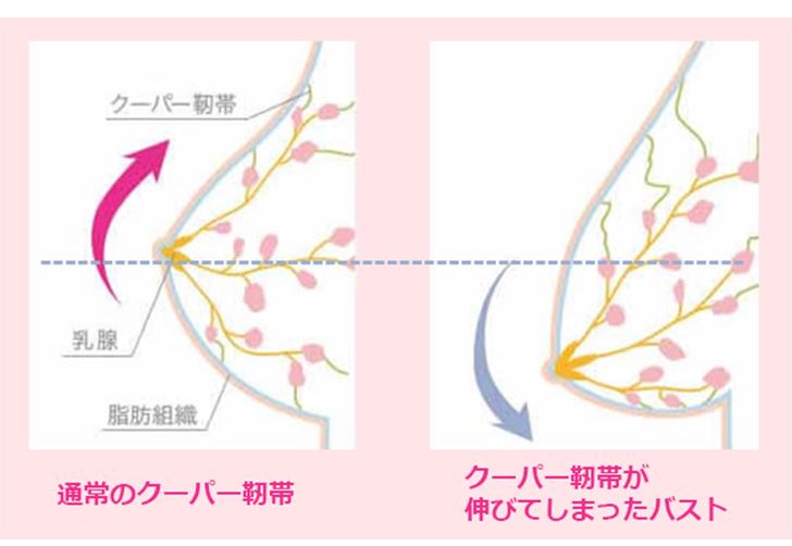 通常のクーパー靭帯と伸びてしまったクーパー靭帯(イメージ)