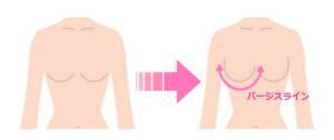 育乳ブラでつくった美しいバージスラインのイラスト