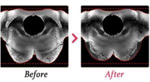 胸を小さく見せるブラの効果・上から見た高さと形の比較画像